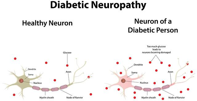 neuropathy_diagram.jpg