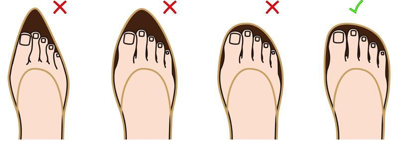 True or False: Bunions CAN be prevented.